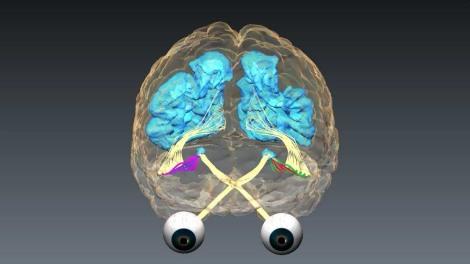 Neuroplasticidad por Moshé Feldenkrais-